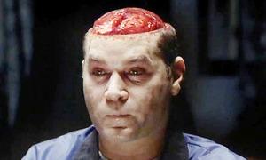 Hannibal Liotta Brain